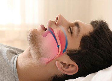 Conheça 5 sintomas da Síndrome da Apneia Obstrutiva do Sono (SAOS)