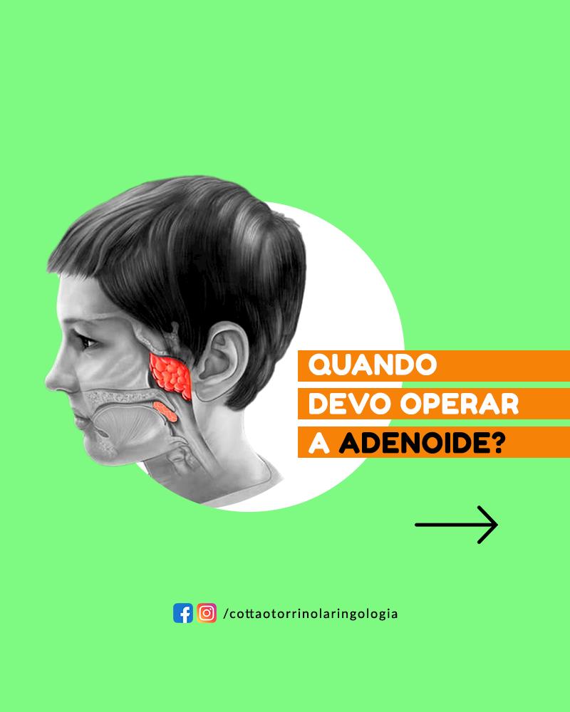 quando devo operar a adenoide?